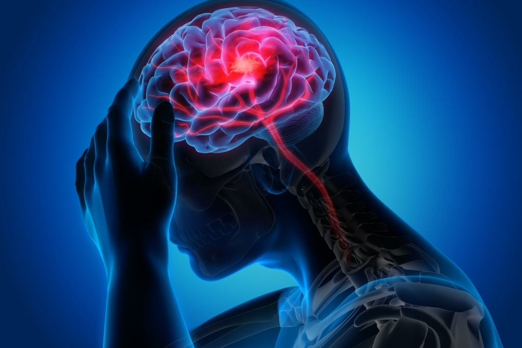Small Differences Make a Difference for Brain Health